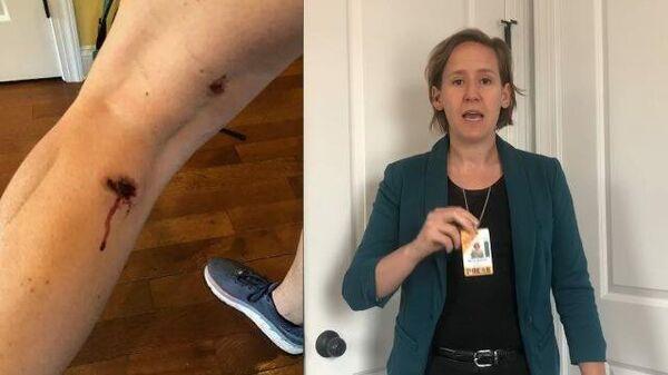 Неоправданная жестокость: полиция США стреляет в журналистов