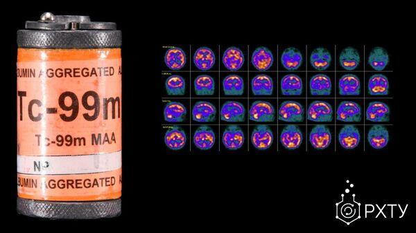 Изображения головного мозга при болезни Альцгеймера, полученные с помощью изотопа технеция