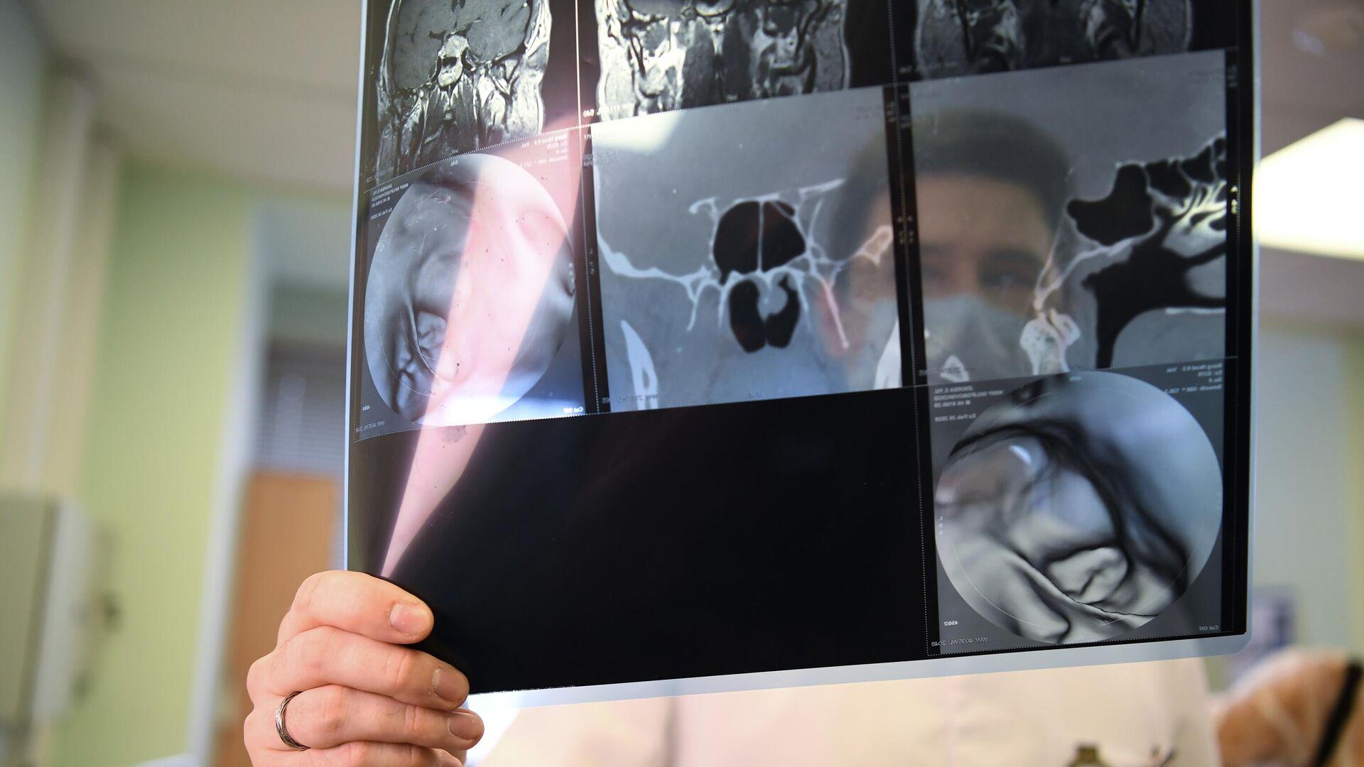 Российские ученые придумали, как заметно улучшить нацеленную терапию рака