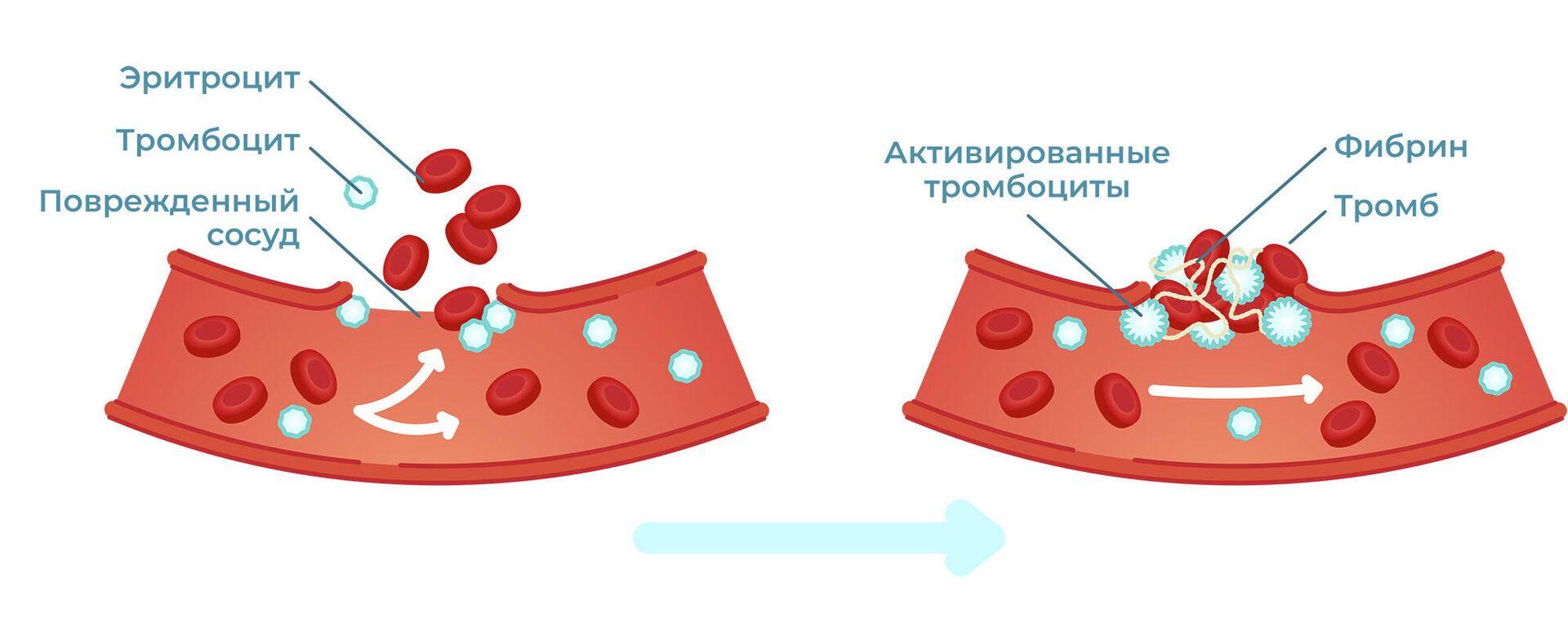 """""""Страдают легкие"""". Ученые рассказали о риске тромбоза при COVID-19"""