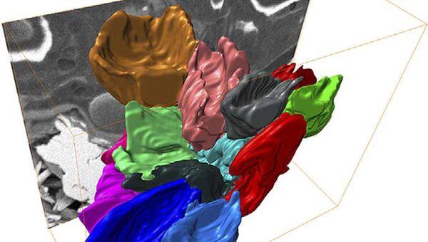 Трехмерное изображение эритроцитов, полученное при помощи FIB-микроскопа