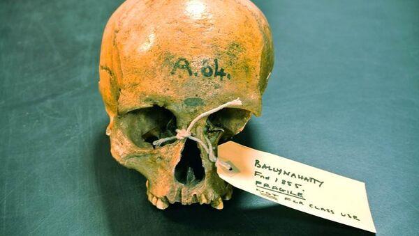 Череп древней жительницы Ирландии