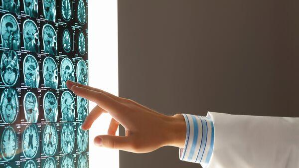 Врач изучает снимки головного мозга человека