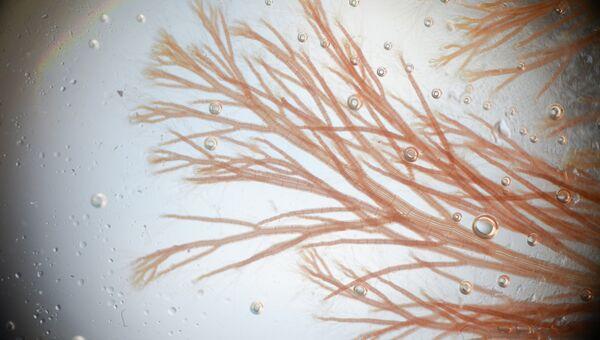 Анфельция складчатая под микроскопом