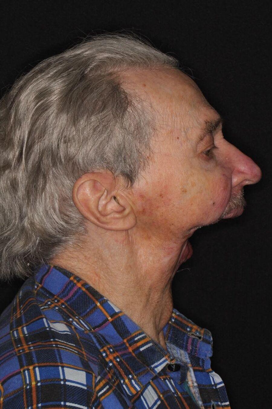 Так Игорь Бачелис выглядел до протезирования