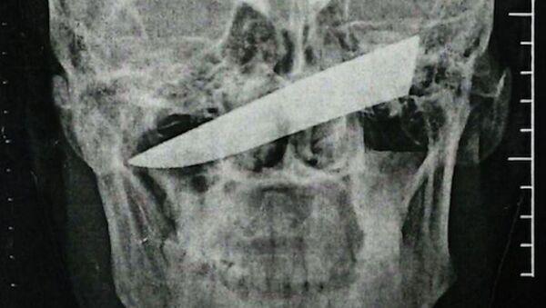 Рентгеновский снимок черепа человека с лезвием ножа после нападения в Южной Африке
