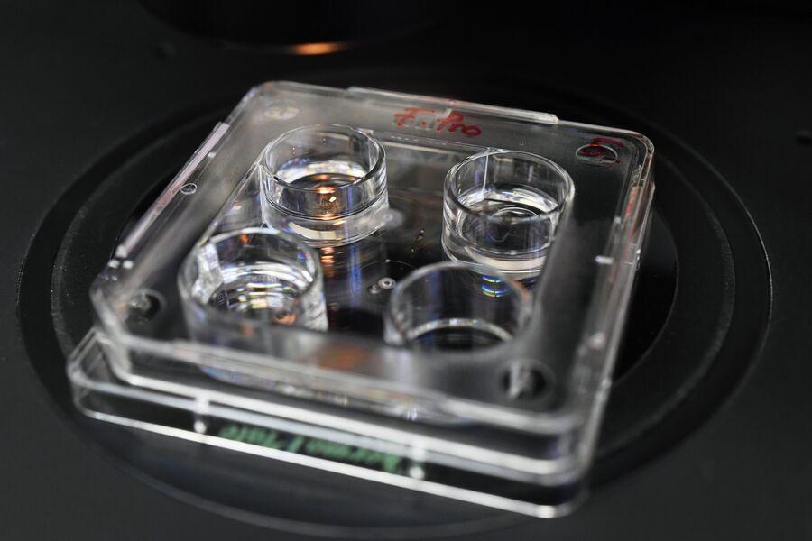 Эмбрион в момент проведения лазерного хэтсенга ЭКО-технологии в клинике акушерства и гинекологии имени В. Ф. Снегирева МГМУ имени И. М. Сеченова