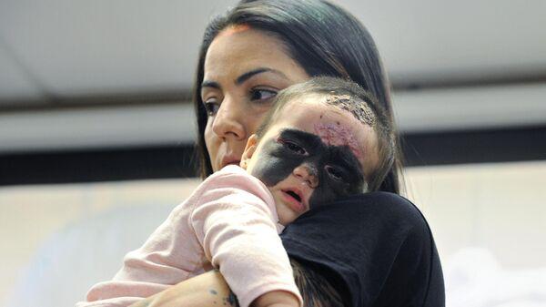 Кэрол Феннер с дочкой Луной на пресс-конференции, посвященной лечению американской девочки с маской Бэтмена