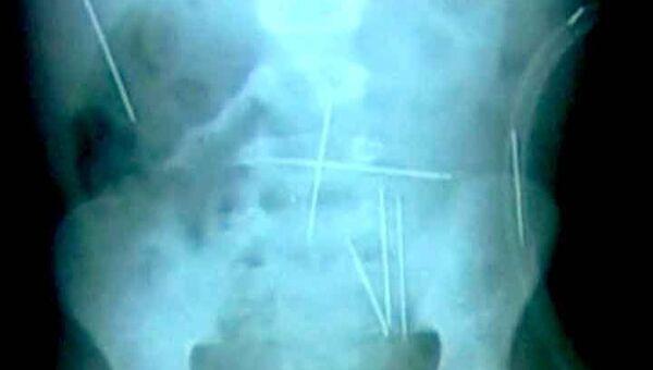 Полсотни стальных иголок нашли в теле двухлетнего малыша