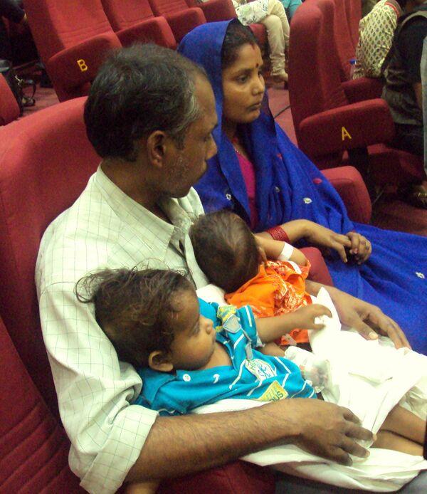 Операция по разделению сиамских близнецов в Индии